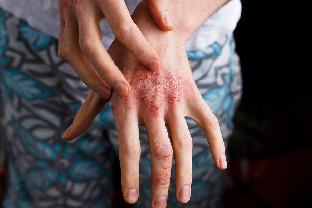 Hud atopijski dermatitis na roki