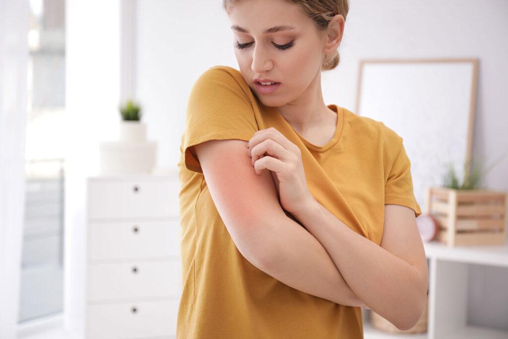 Kako prepoznamo kožne alergije?