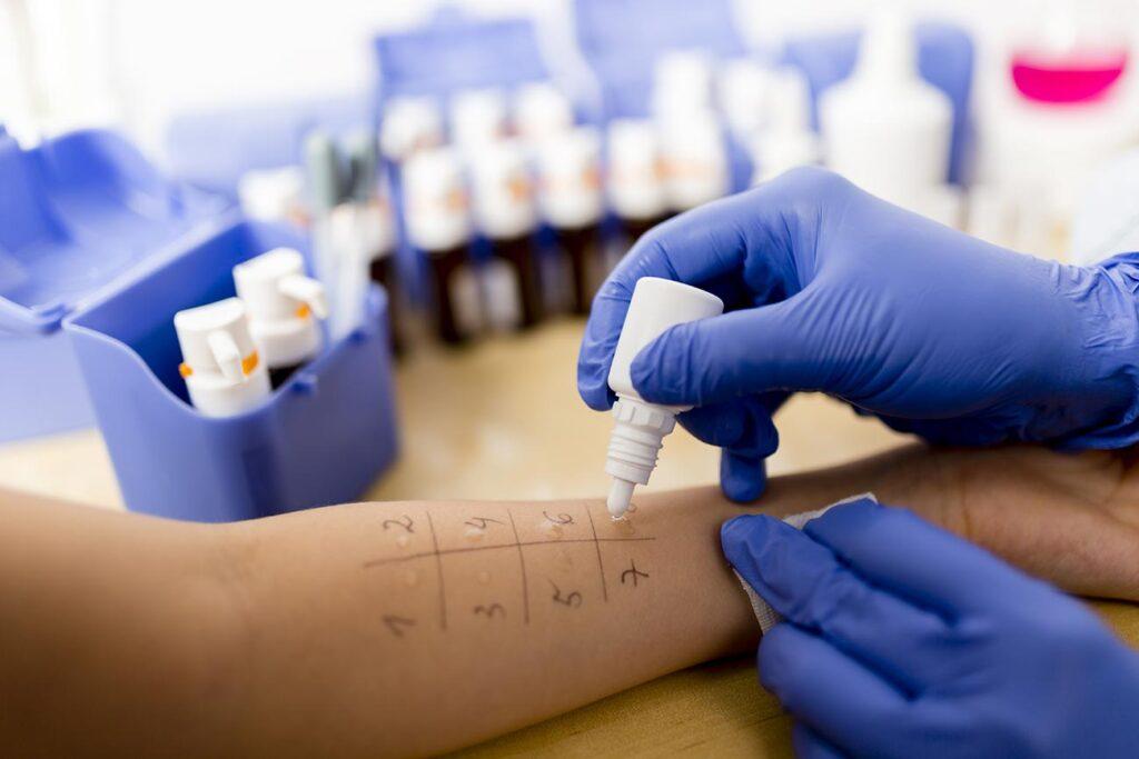Kožni testi so med najpogostejšimi načini ugotavljanja alergij.